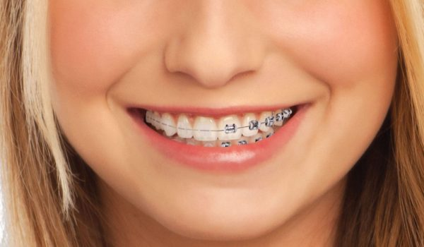 brackets-metalicos-esteticos